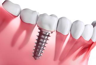 implant tedavisi ankara